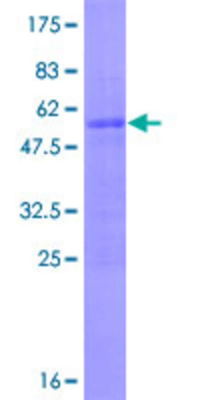 AbnovaHuman MSC Full-length ORF (NP_005089.2, 1 a.a. - 206 a.a.) Recombinant