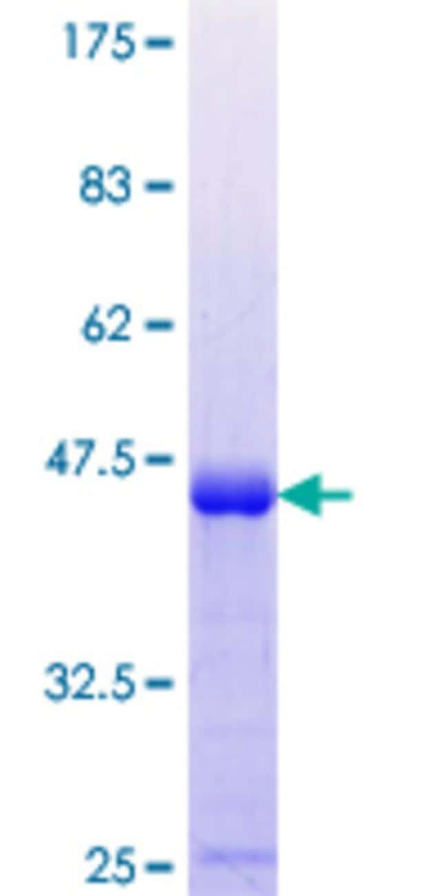 AbnovaHuman MSC Partial ORF (NP_005089.1, 1 a.a. - 100 a.a.) Recombinant