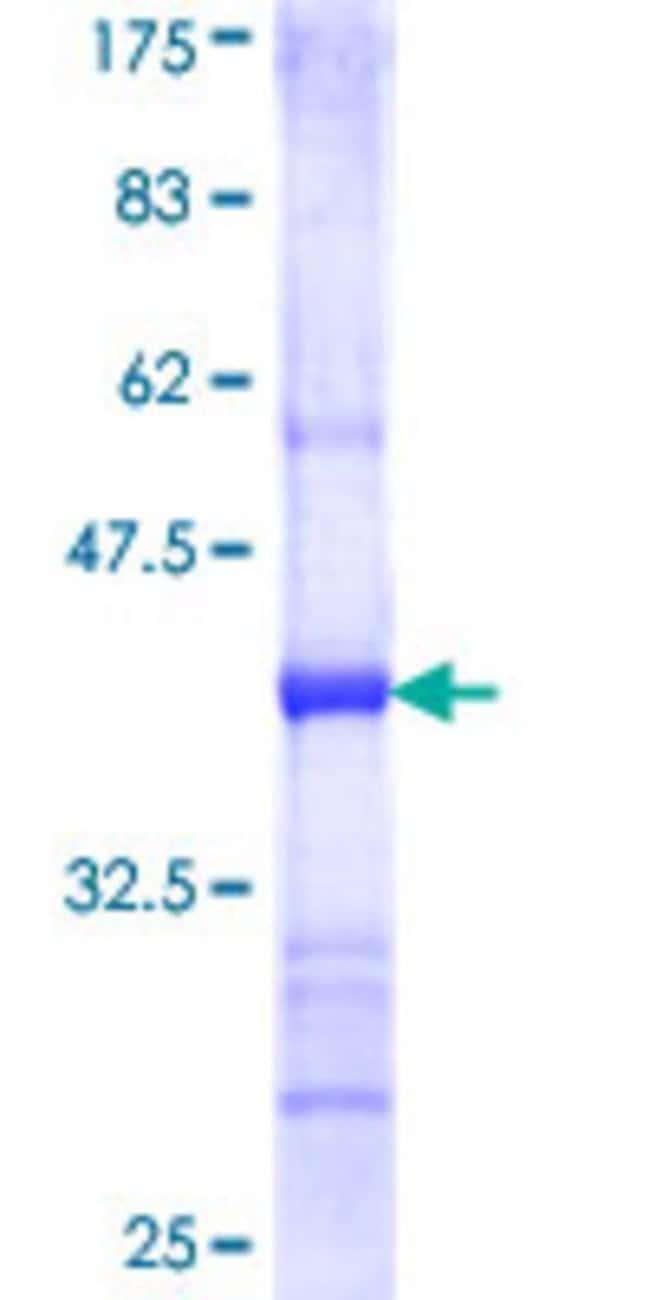 AbnovaHuman CRLF1 Partial ORF (NP_004741, 135 a.a. - 230 a.a.) Recombinant