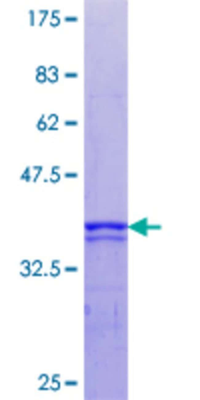 AbnovaHuman RPS6KA5 Partial ORF (AAH17187.1, 271 a.a. - 370 a.a.) Recombinant