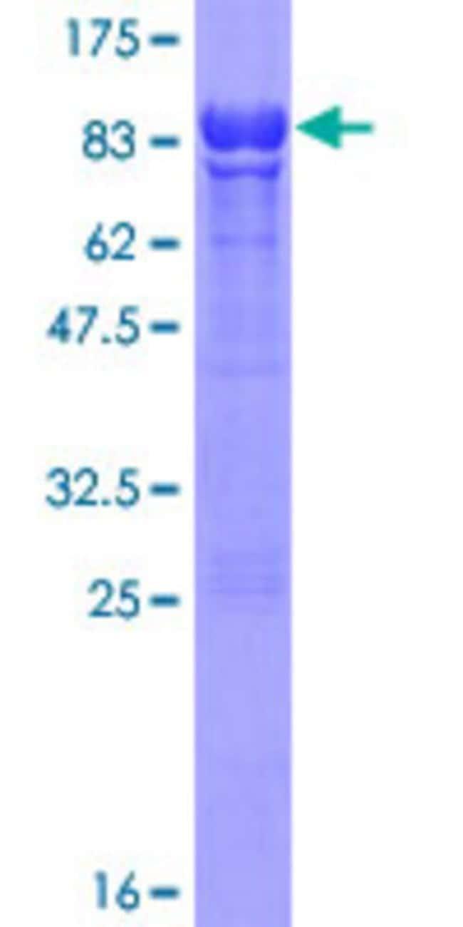 AbnovaHuman STK17A Full-length ORF (AAH47696.1, 1 a.a. - 414 a.a.) Recombinant