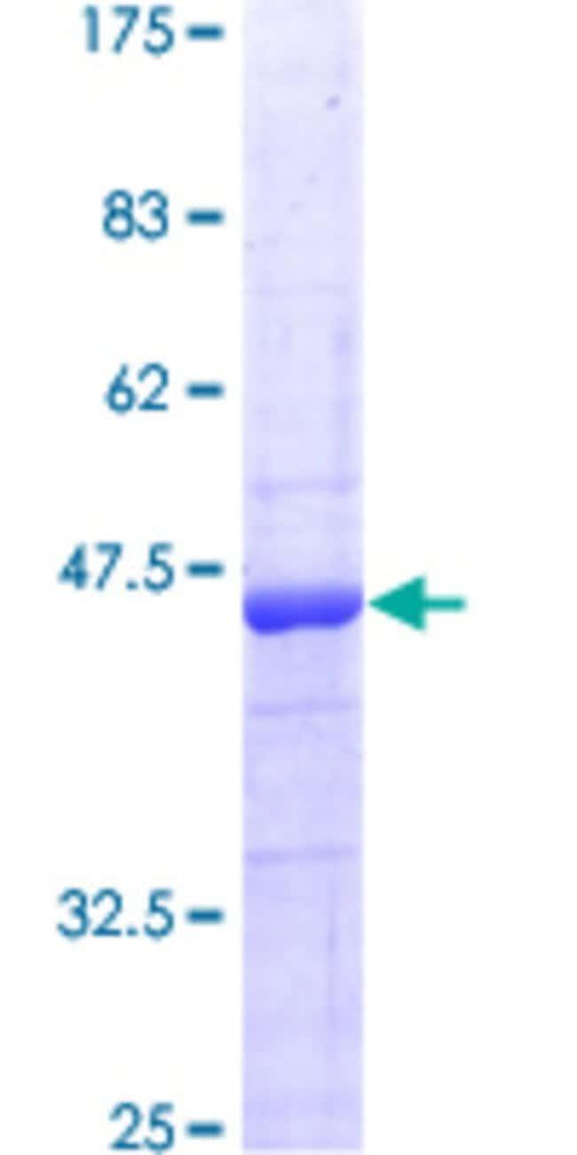 AbnovaHuman ITGB1BP1 Full-length ORF (AAH12264, 1 a.a. - 200 a.a.) Recombinant