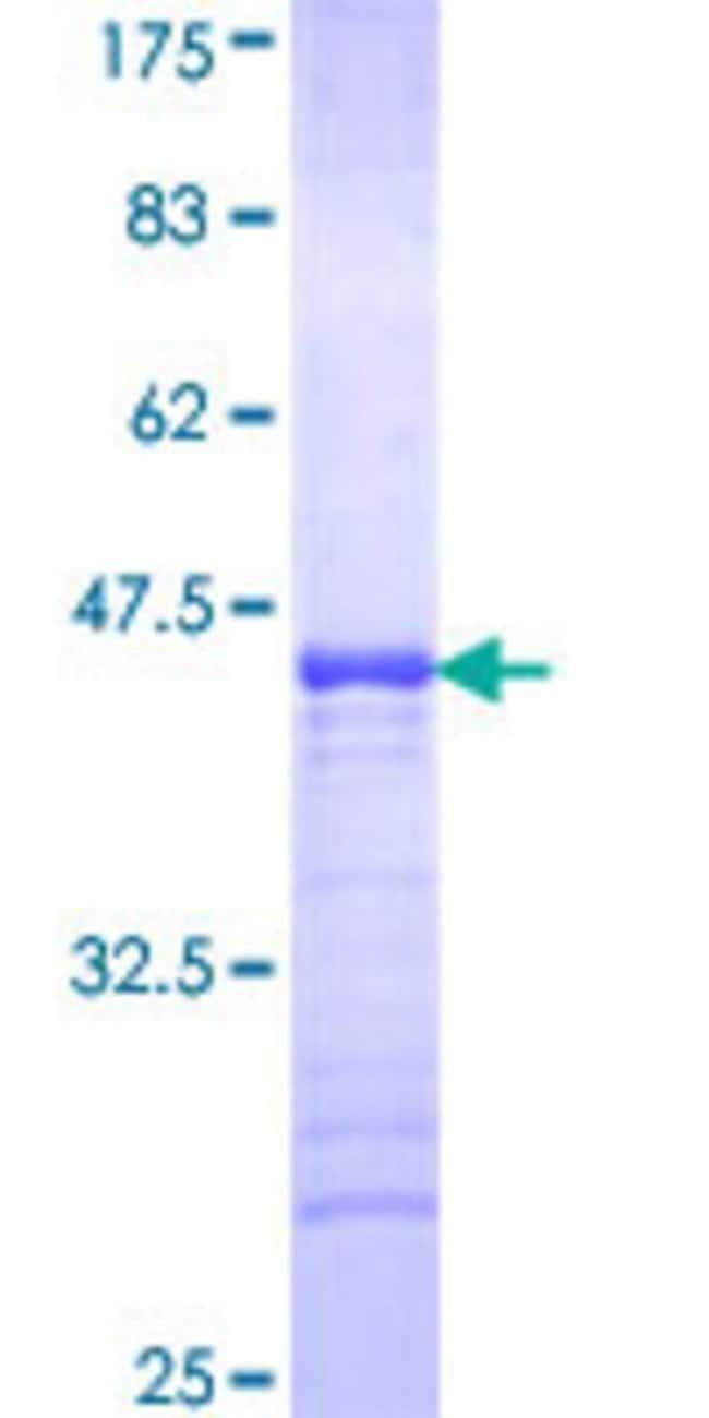 AbnovaHuman BCL7B Partial ORF (NP_001698, 124 a.a. - 202 a.a.) Recombinant