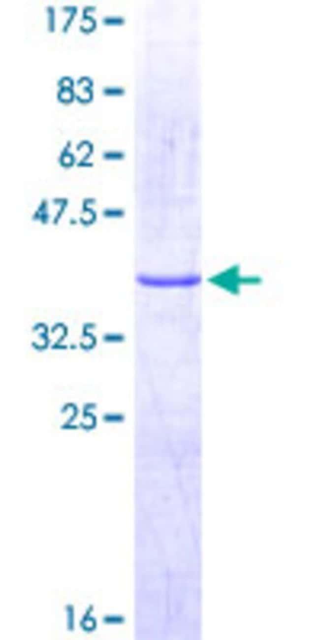 AbnovaHuman GPR56 Partial ORF (NP_758961, 31 a.a. - 130 a.a.) Recombinant