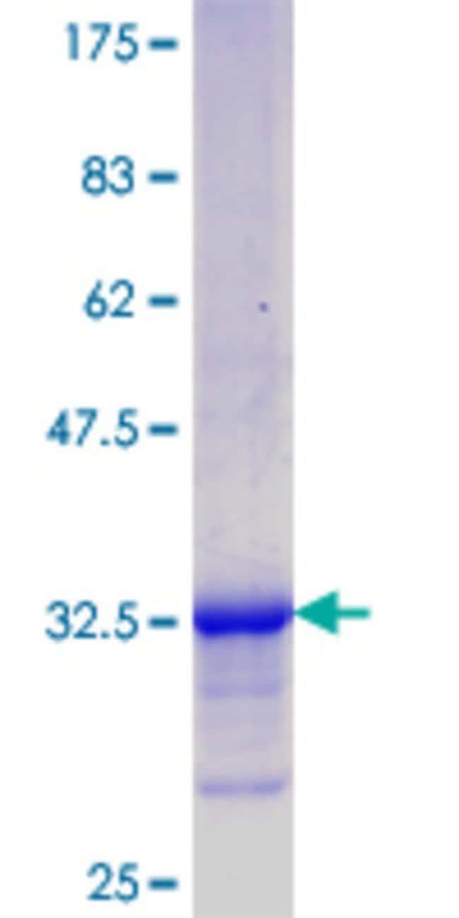 Abnova™Human NREP Partial ORF (NP_004763.1, 1 a.a. - 68 a.a.) Recombinant Protein with GST-tag at N-terminal 10μg Abnova™Human NREP Partial ORF (NP_004763.1, 1 a.a. - 68 a.a.) Recombinant Protein with GST-tag at N-terminal