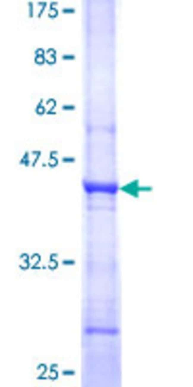 AbnovaHuman PTER Partial ORF (NP_001001484, 250 a.a. - 349 a.a.) Recombinant