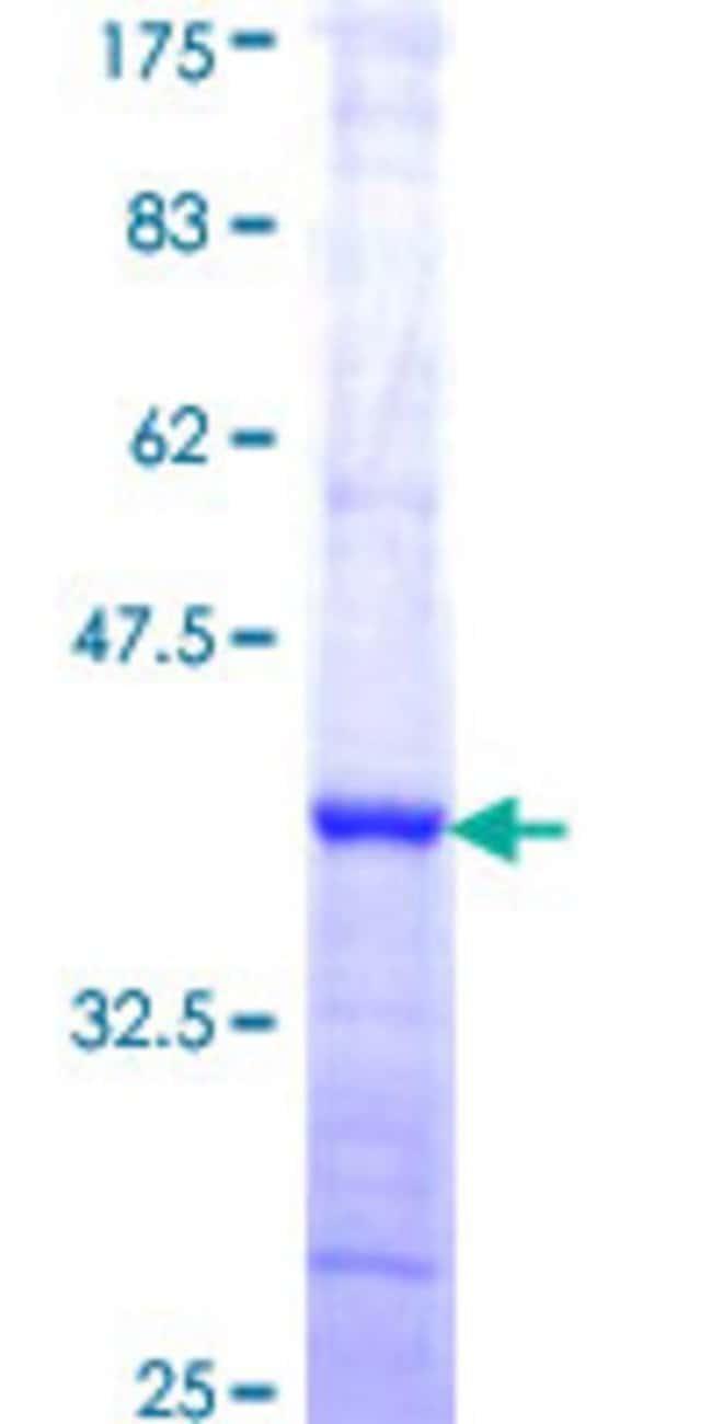 AbnovaHuman COPS2 Partial ORF (NP_004227, 344 a.a. - 443 a.a.) Recombinant
