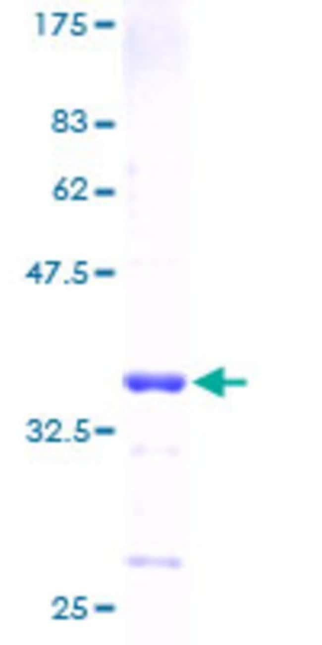 Abnova Human HMGN3 Full-length ORF (AAH09529, 1 a.a. - 77 a.a.) Recombinant