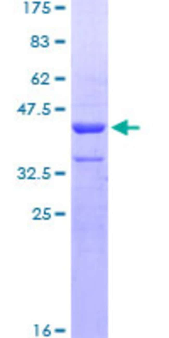 Abnova™Human ZNHIT3 Full-length ORF (AAH17931, 1 a.a. - 155 a.a.) Recombinant Protein with GST-tag at N-terminal 25μg Abnova™Human ZNHIT3 Full-length ORF (AAH17931, 1 a.a. - 155 a.a.) Recombinant Protein with GST-tag at N-terminal