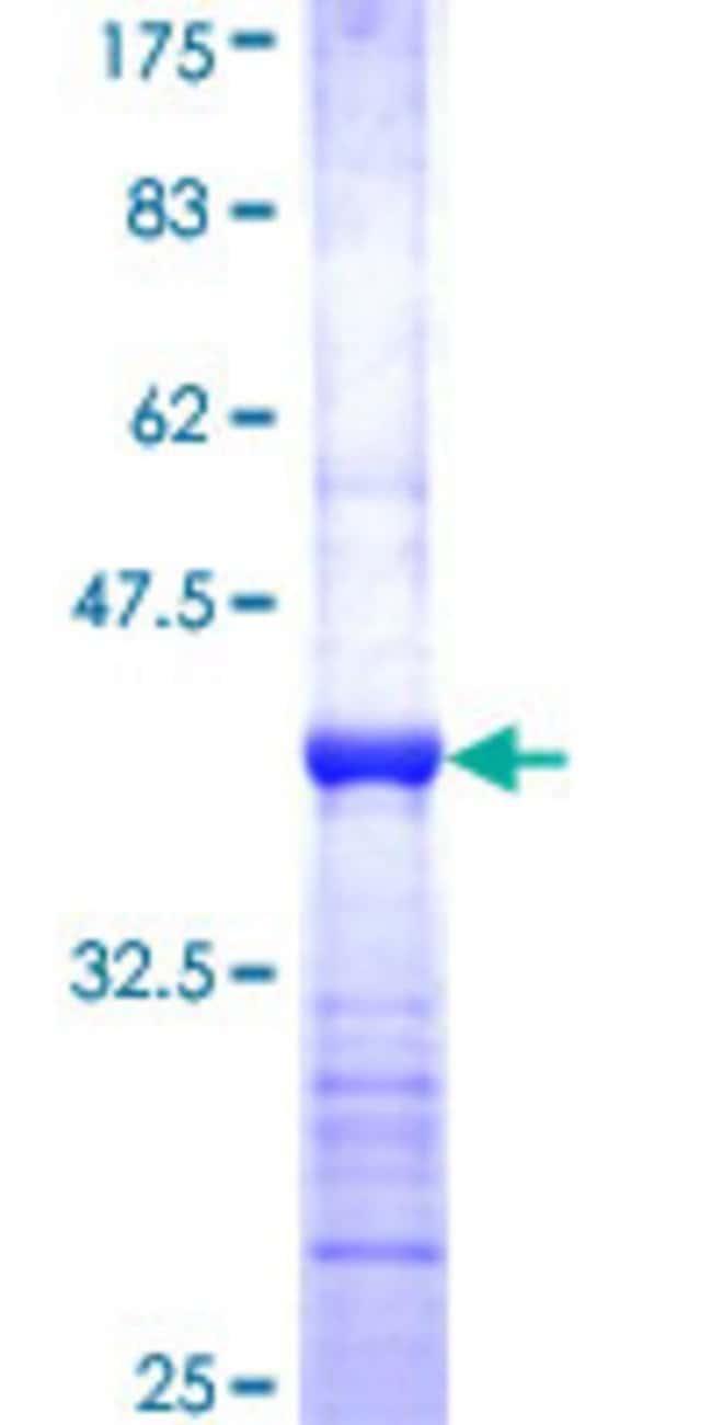 Abnova Human GTF3C5 Partial ORF (NP_036219, 378 a.a. - 485 a.a.) Recombinant