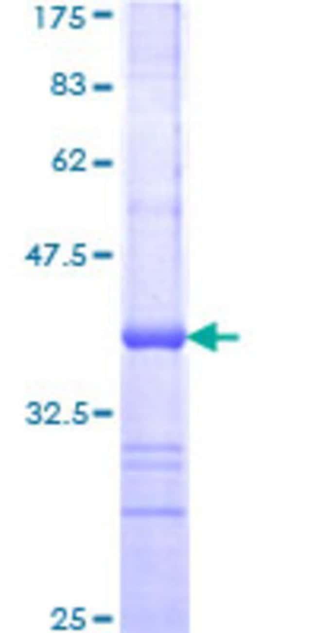 AbnovaHuman GTF3C4 Partial ORF (NP_036336, 723 a.a. - 822 a.a.) Recombinant