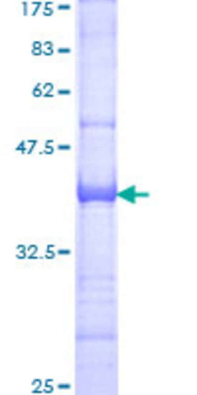 Abnova™ Human GTF3C3 Partial ORF (NP_036218, 112 a.a. - 214 a.a.) Recombinant Protein with GST-tag at N-terminal 10μg Abnova™ Human GTF3C3 Partial ORF (NP_036218, 112 a.a. - 214 a.a.) Recombinant Protein with GST-tag at N-terminal
