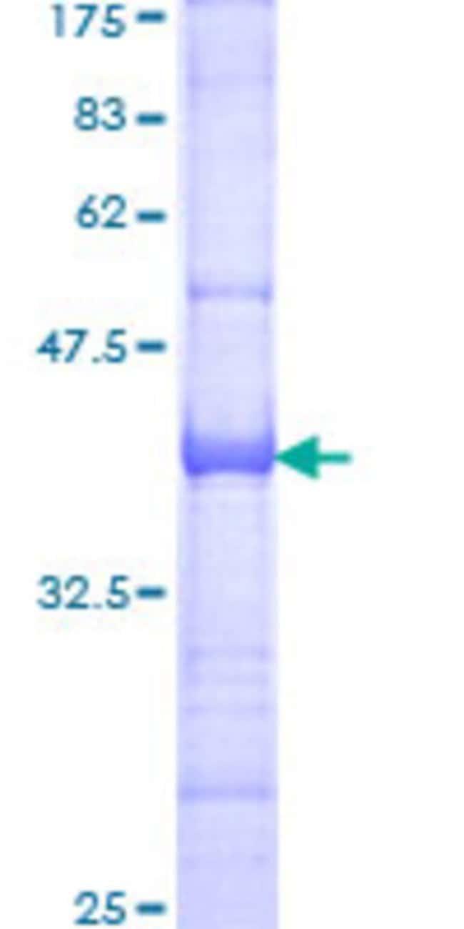 AbnovaHuman GTF3C3 Partial ORF (NP_036218, 112 a.a. - 214 a.a.) Recombinant