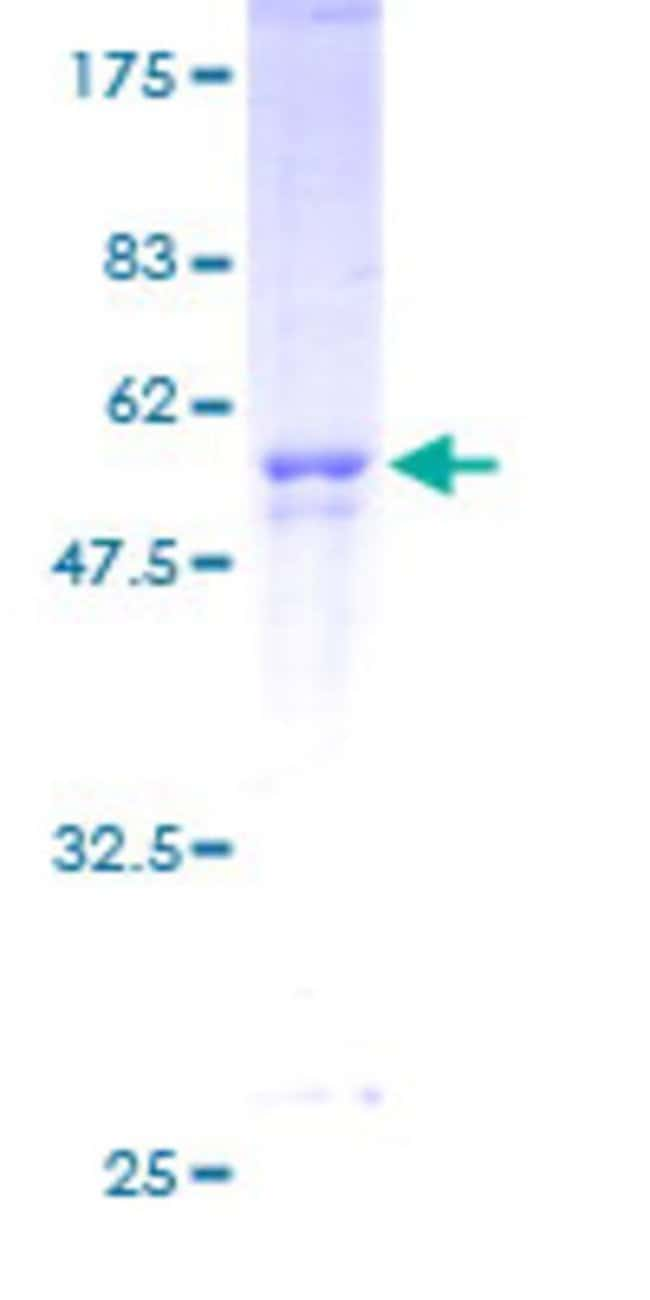 Abnova™Human CNOT8 Full-length ORF (AAH17366, 1 a.a. - 292 a.a.) Recombinant Protein with GST-tag at N-terminal 10μg Abnova™Human CNOT8 Full-length ORF (AAH17366, 1 a.a. - 292 a.a.) Recombinant Protein with GST-tag at N-terminal