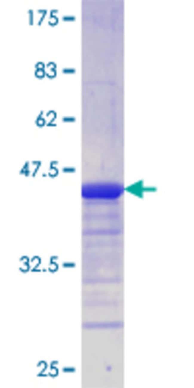 AbnovaHuman SNAP29 Partial ORF (AAH09715.1, 118 a.a. - 245 a.a.) Recombinant