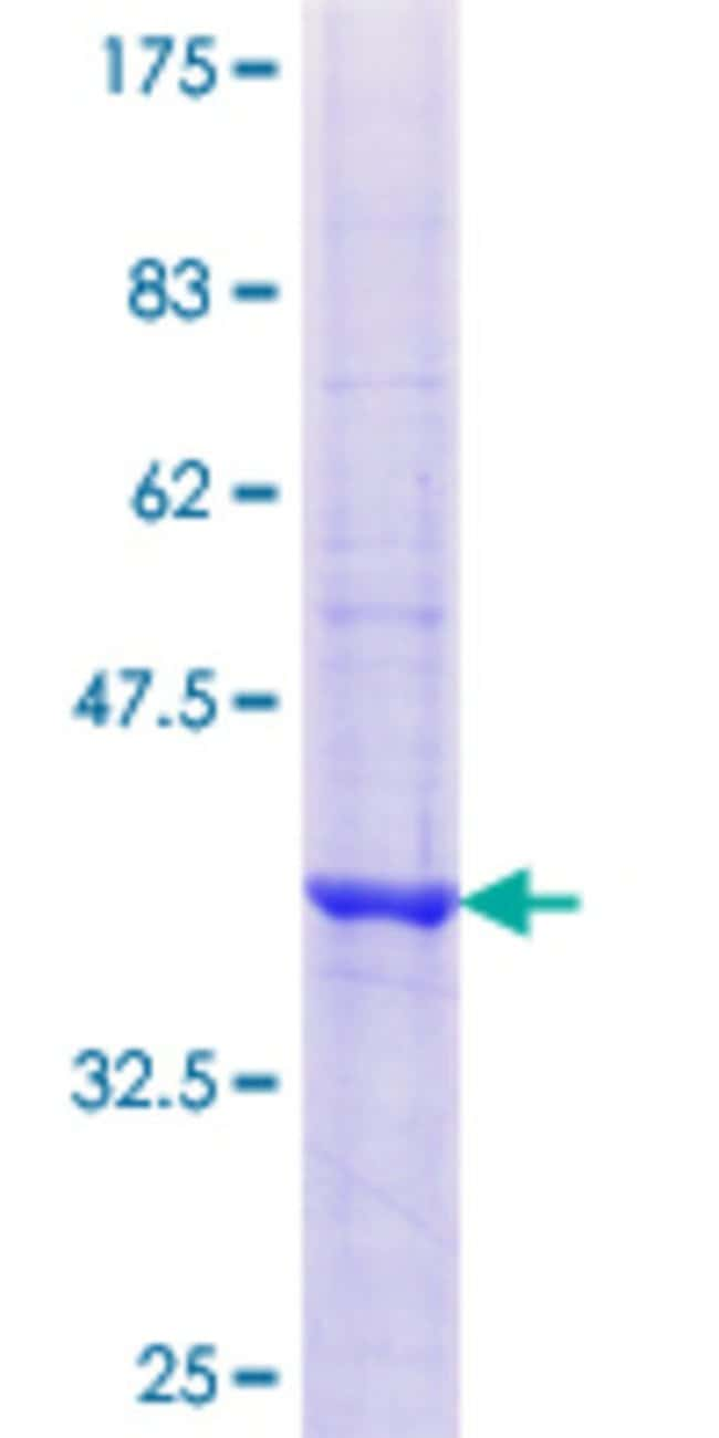 Abnova™Human EFTUD2 Partial ORF (NP_004238.2, 873 a.a. - 972 a.a.) Recombinant Protein with GST-tag at N-terminal 10μg Abnova™Human EFTUD2 Partial ORF (NP_004238.2, 873 a.a. - 972 a.a.) Recombinant Protein with GST-tag at N-terminal