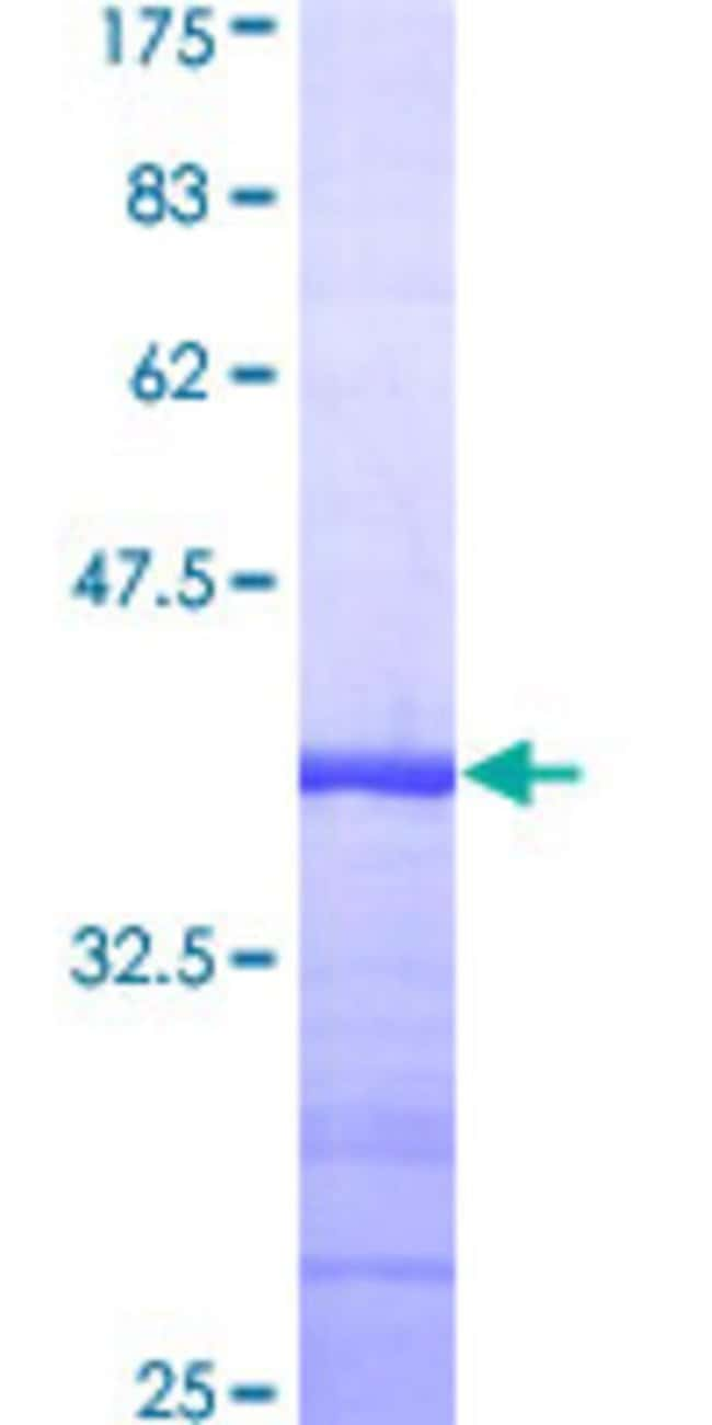 AbnovaHuman TAOK2 Partial ORF (AAH51798, 831 a.a. - 930 a.a.) Recombinant