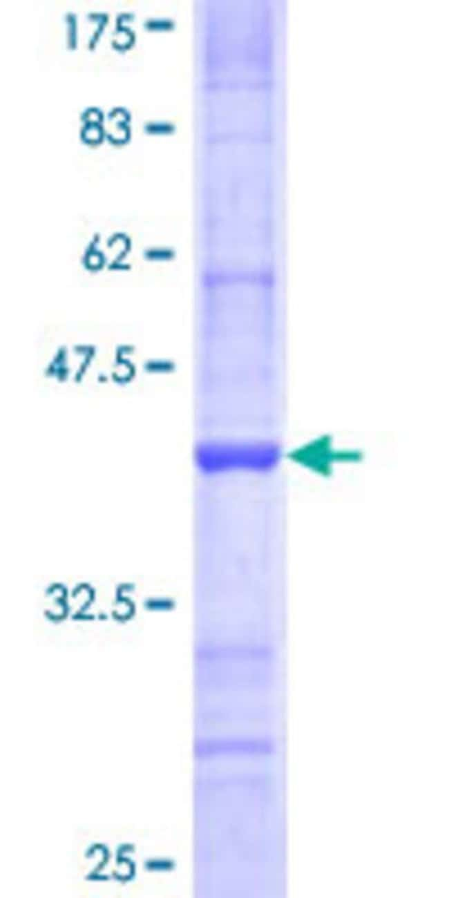 AbnovaHuman NDST3 Partial ORF (NP_004775, 162 a.a. - 259 a.a.) Recombinant