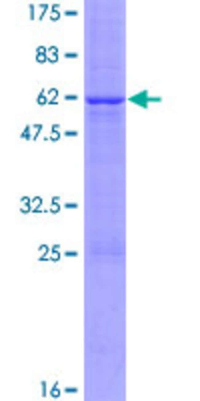 AbnovaHuman CER1 Full-length ORF (AAH69491.1, 1 a.a. - 267 a.a.) Recombinant
