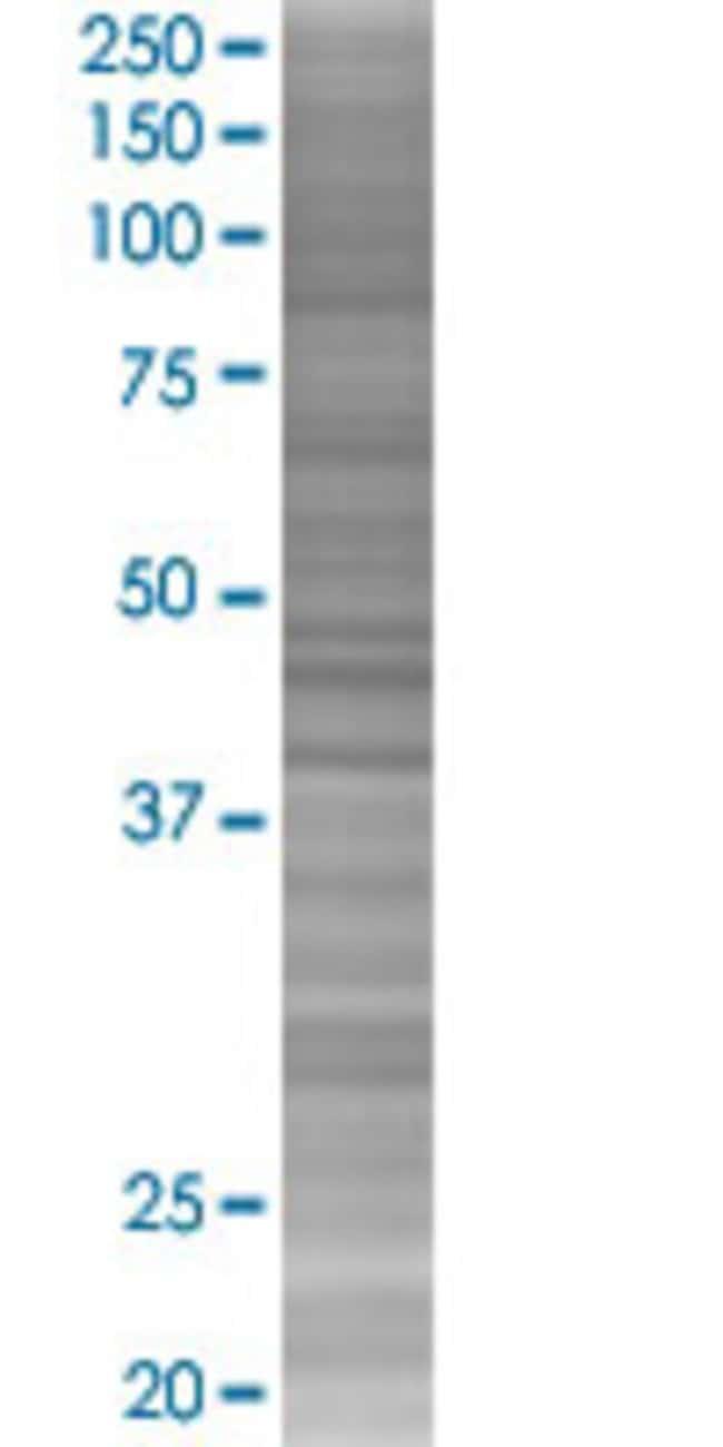 Abnova PRSS15 293T Cell Transient Overexpression Lysate (Denatured) 100µL:Life