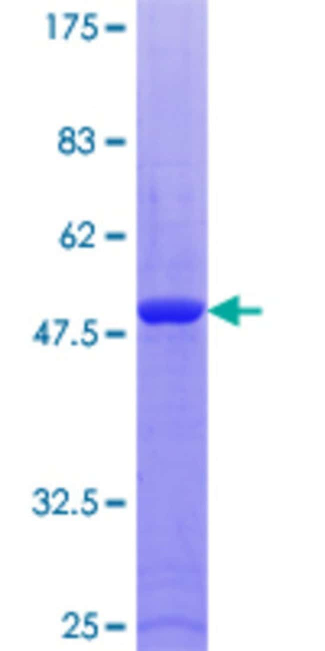 Abnova™Human RAB9A Full-length ORF (NP_004242.1, 1 a.a. - 201 a.a.) Recombinant Protein with GST-tag at N-terminal 25μg Abnova™Human RAB9A Full-length ORF (NP_004242.1, 1 a.a. - 201 a.a.) Recombinant Protein with GST-tag at N-terminal