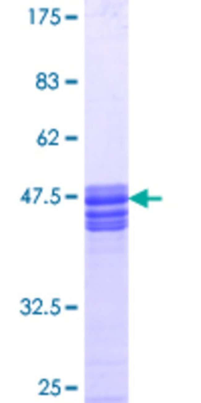 Abnova™ Human SLC9A3R1 Partial ORF (NP_004243.1, 252 a.a. - 358 a.a.) Recombinant Protein with GST-tag at N-terminal 25μg Abnova™ Human SLC9A3R1 Partial ORF (NP_004243.1, 252 a.a. - 358 a.a.) Recombinant Protein with GST-tag at N-terminal