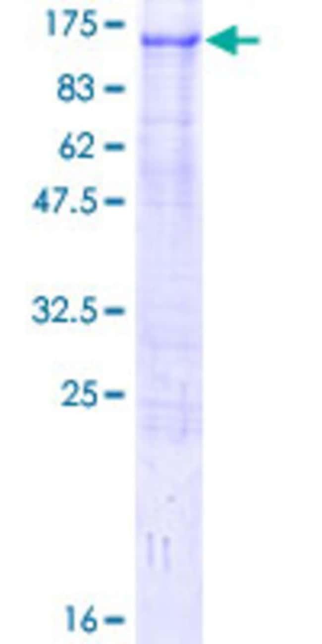 AbnovaHuman ZFYVE9 Full-length ORF (NP_015562.1, 1 a.a. - 762 a.a.) Recombinant