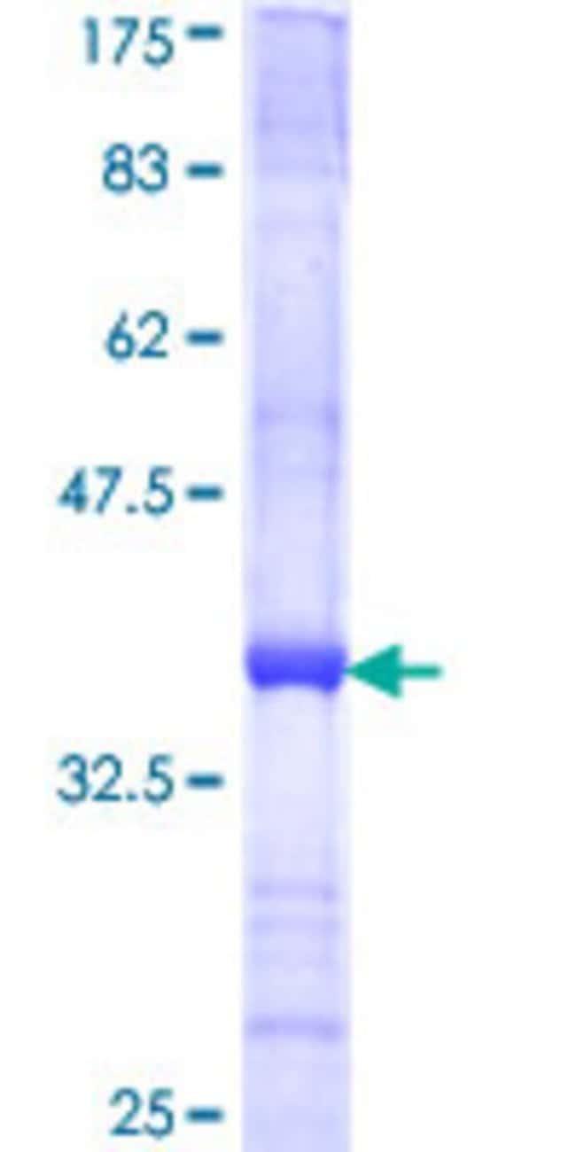 AbnovaHuman TM9SF2 Partial ORF (NP_004791, 116 a.a. - 215 a.a.) Recombinant