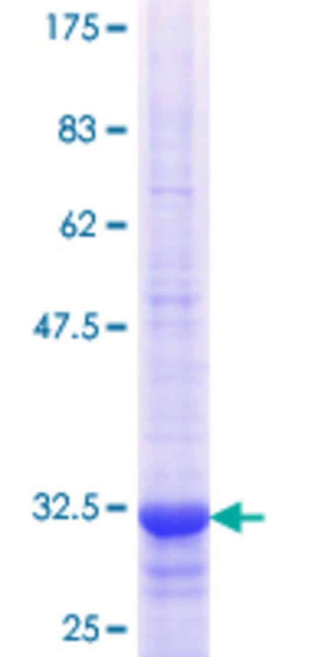 Abnova™ Human SLC22A8 Partial ORF (NP_004245.2, 256 a.a. - 325 a.a.) Recombinant Protein with GST-tag at N-terminal 25μg Abnova™ Human SLC22A8 Partial ORF (NP_004245.2, 256 a.a. - 325 a.a.) Recombinant Protein with GST-tag at N-terminal