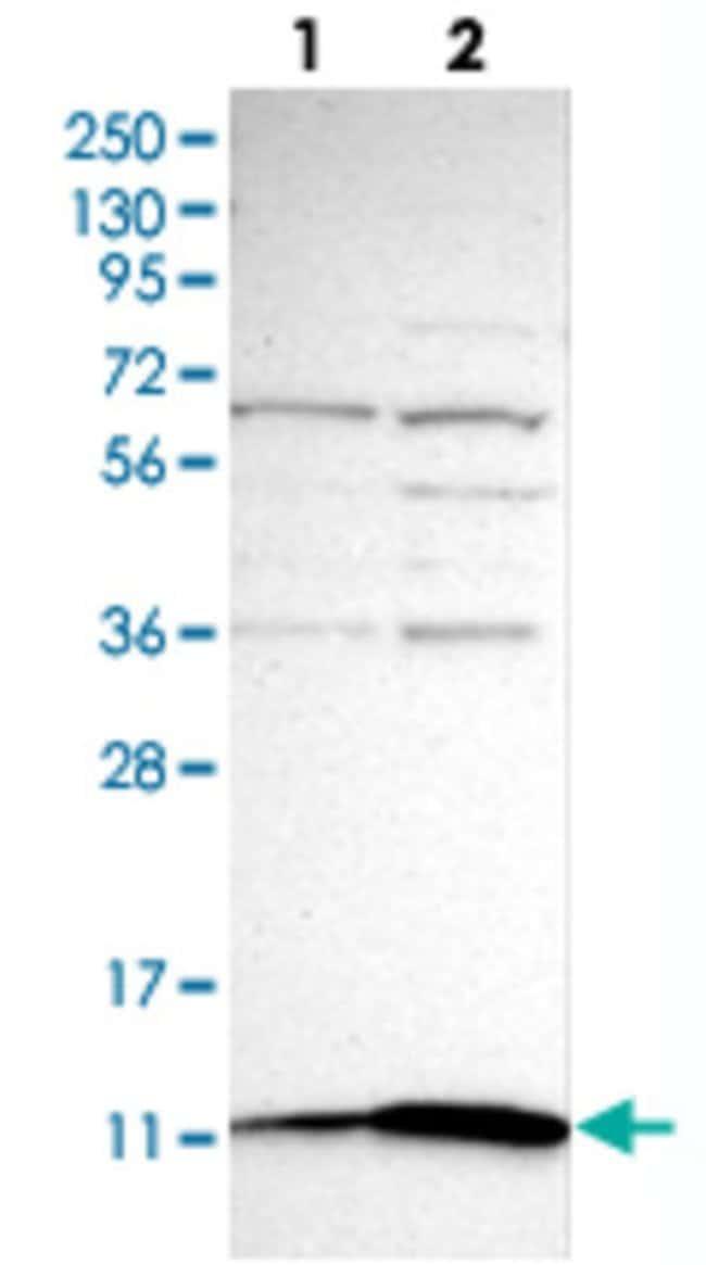 S100A10 Rabbit anti-Human, Polyclonal , Abnova 100μL; Unlabeled:Antibodies