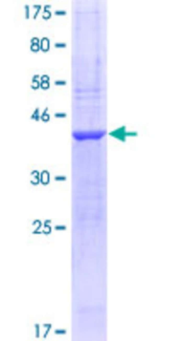 AbnovaHuman NRXN1 Partial ORF (NP_004792, 31 a.a. - 130 a.a.) Recombinant