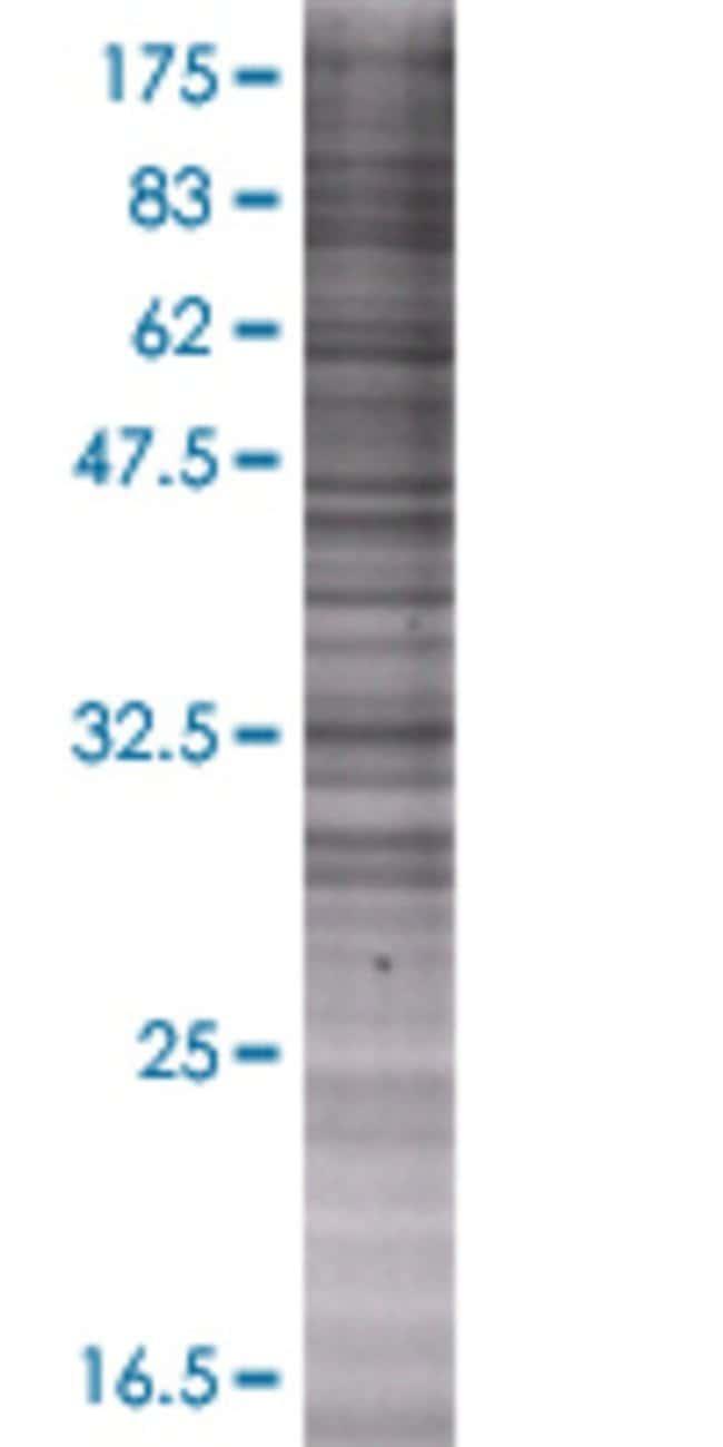 Abnova GRHPR 293T Cell Transient Overexpression Lysate (Denatured) 100µL:Life