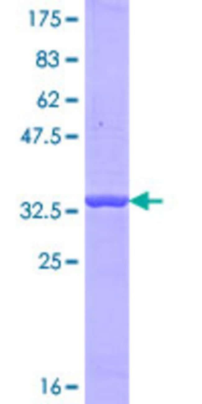 AbnovaHuman OTOF Partial ORF (NP_919224.1, 1 a.a. - 98 a.a.) Recombinant