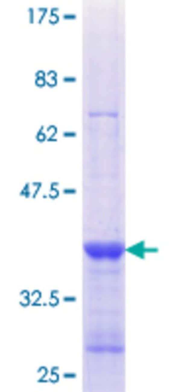 AbnovaHuman COG1 Partial ORF (NP_061184.1, 881 a.a. - 980 a.a.) Recombinant