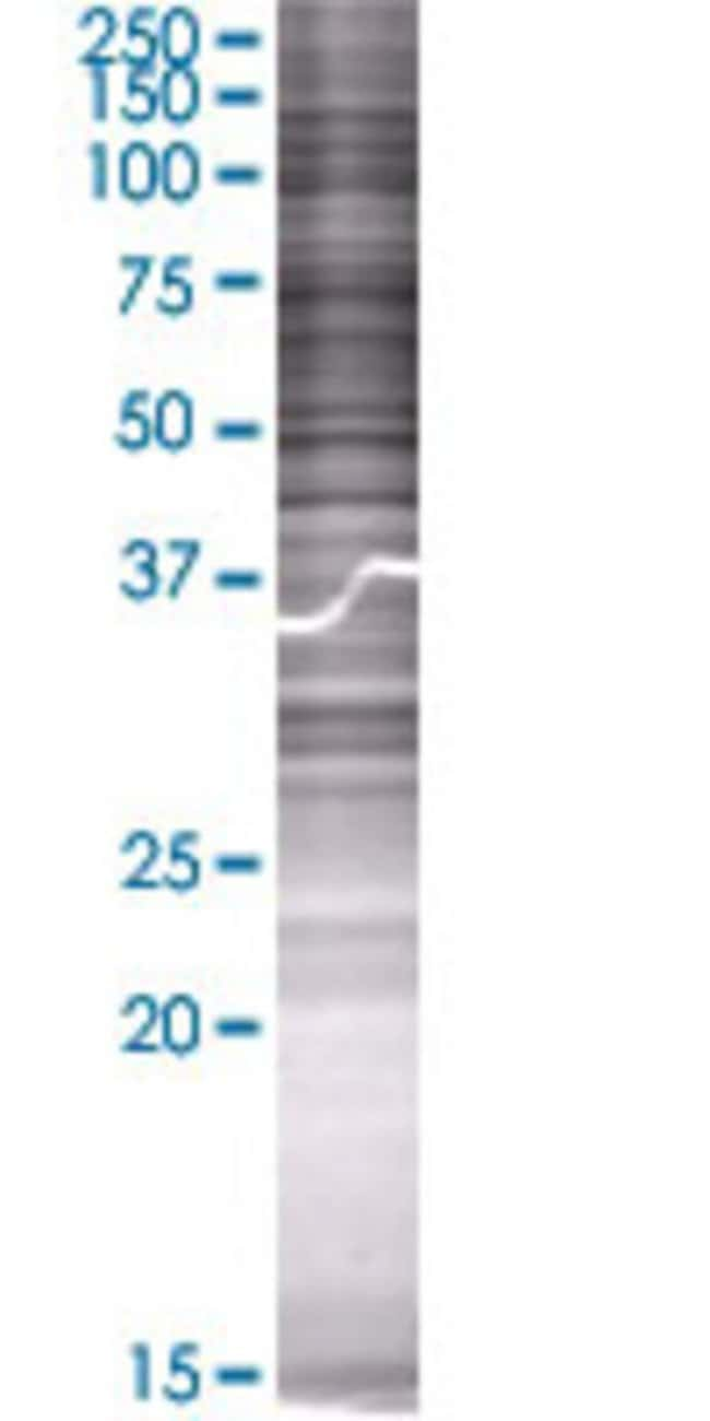 Abnova LIPG 293T Cell Transient Overexpression Lysate (Denatured) 100µL:Life