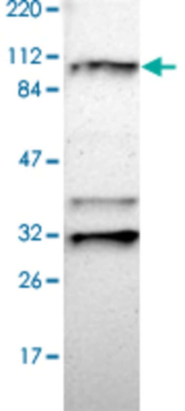 RNF213 Rabbit anti-Human, Polyclonal , Abnova 100μL; Unlabeled:Antibodies