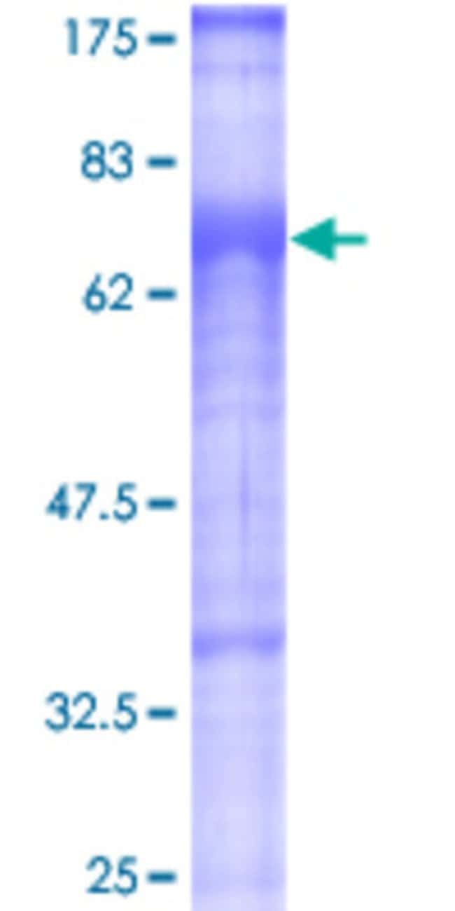 Abnova™Human TGFBRAP1 Full-length ORF (AAH20548, 1 a.a. - 860 a.a.) Recombinant Protein with GST-tag at N-terminal 25μg Abnova™Human TGFBRAP1 Full-length ORF (AAH20548, 1 a.a. - 860 a.a.) Recombinant Protein with GST-tag at N-terminal