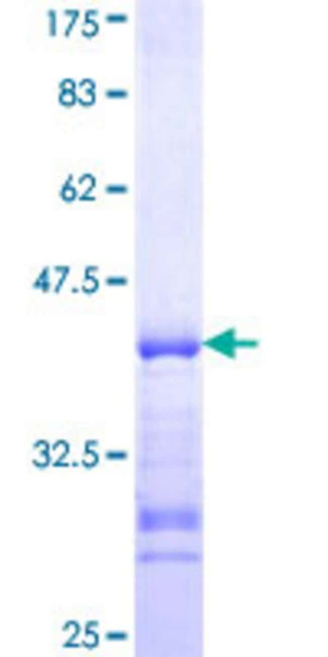 Abnova Human HS6ST1 Partial ORF (NP_004798, 303 a.a. - 401 a.a.) Recombinant
