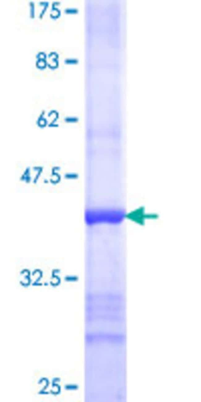 Abnova™Human STOML1 Partial ORF (NP_004800, 107 a.a. - 206 a.a.) Recombinant Protein with GST-tag at N-terminal 10μg Abnova™Human STOML1 Partial ORF (NP_004800, 107 a.a. - 206 a.a.) Recombinant Protein with GST-tag at N-terminal