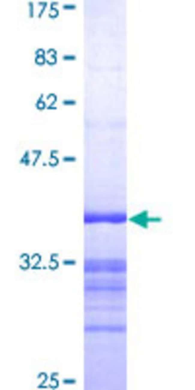 AbnovaHuman GRAP2 Partial ORF (AAH25692, 226 a.a. - 315 a.a.) Recombinant