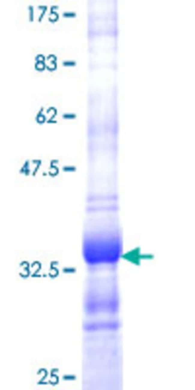 AbnovaHuman SEP15 Partial ORF (NP_004252, 97 a.a. - 165 a.a.) Recombinant
