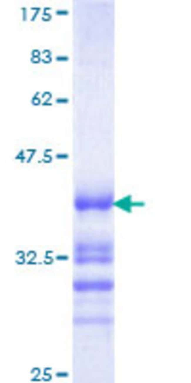 AbnovaHuman ZNF265 Partial ORF (NP_005446, 1 a.a. - 106 a.a.) Recombinant