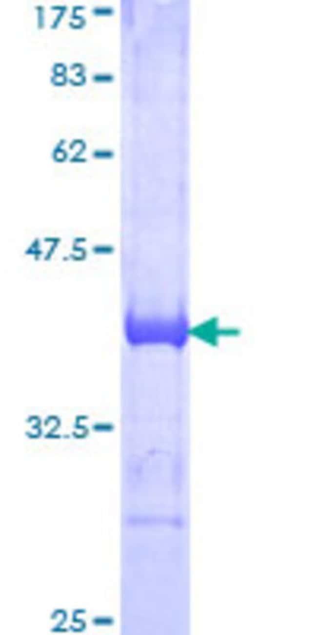 AbnovaHuman ARHGAP29 Partial ORF (AAH93767.1, 12 a.a. - 111 a.a.) Recombinant