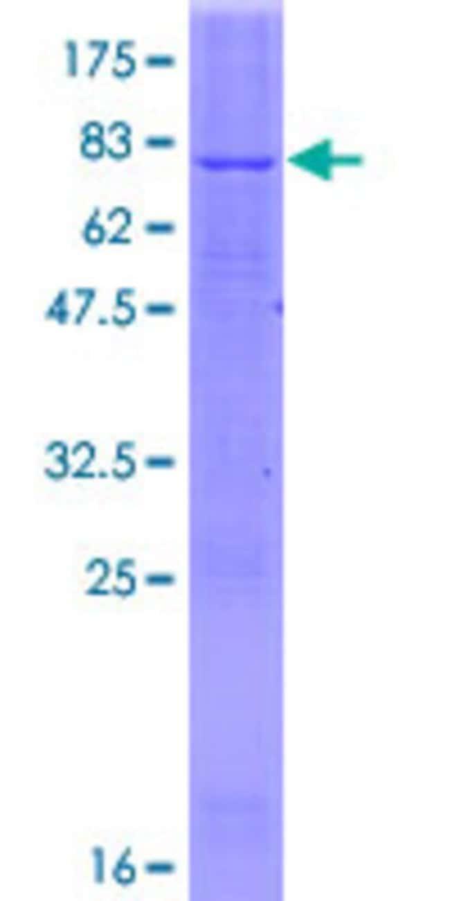 AbnovaHuman FADS2 Full-length ORF (NP_004256.1, 1 a.a. - 444 a.a.) Recombinant