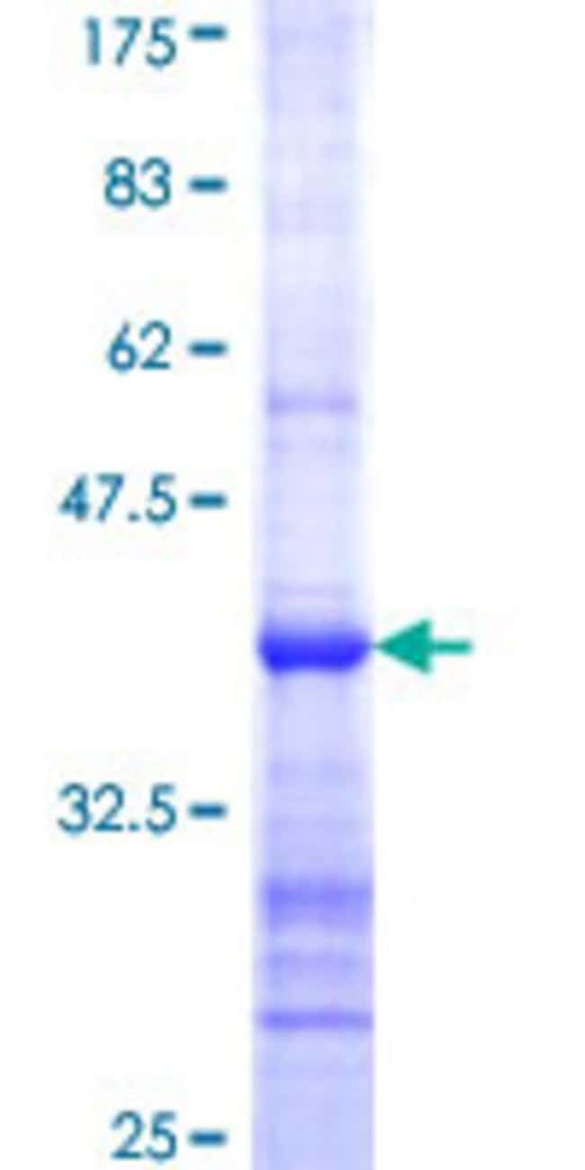 Abnova™Human CYP7B1 Partial ORF (NP_004811, 203 a.a. - 286 a.a.) Recombinant Protein with GST-tag at N-terminal 25μg Abnova™Human CYP7B1 Partial ORF (NP_004811, 203 a.a. - 286 a.a.) Recombinant Protein with GST-tag at N-terminal