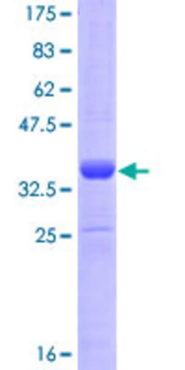 AbnovaHuman HAND1 Partial ORF (NP_004812.1, 125 a.a. - 215 a.a.) Recombinant