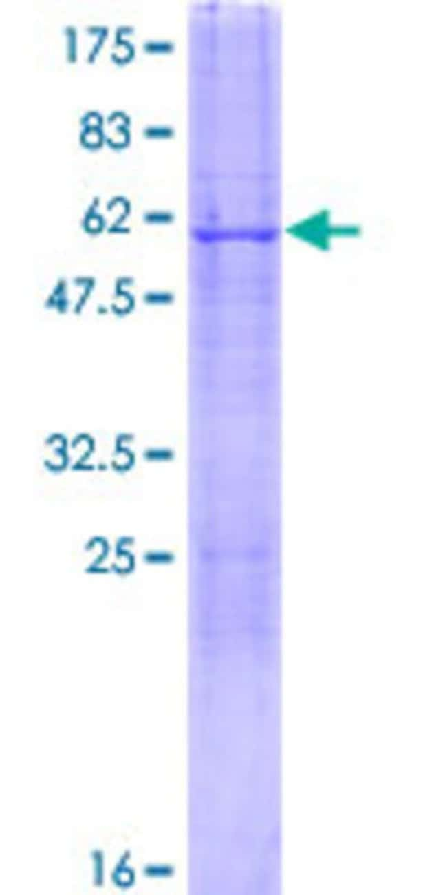 AbnovaHuman CDYL Full-length ORF (NP_736608.1, 1 a.a. - 309 a.a.) Recombinant