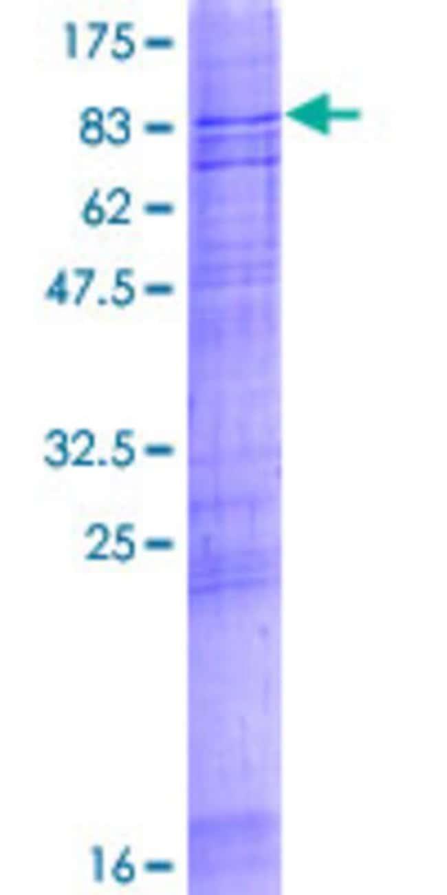 AbnovaHuman ABCG2 Full-length ORF (AAH21281.1, 1 a.a. - 655 a.a.) Recombinant