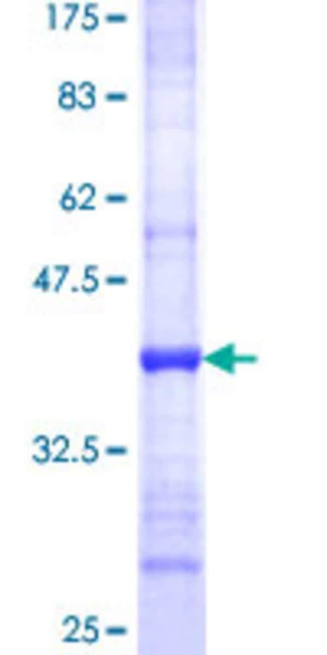 AbnovaHuman CHST2 Partial ORF (NP_004258, 431 a.a. - 530 a.a.) Recombinant
