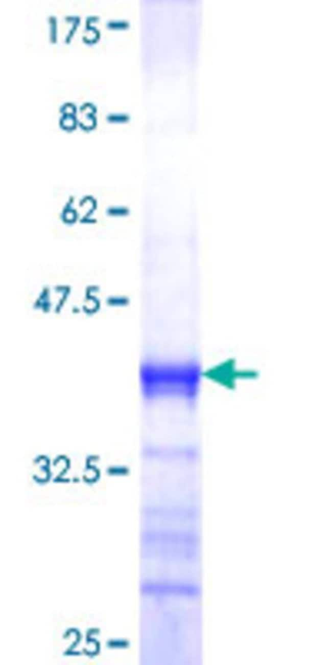 AbnovaHuman CRSP3 Partial ORF (NP_004821, 531 a.a. - 630 a.a.) Recombinant